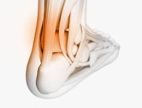 Traumi e sport - Tendinopatie tendine di Achille